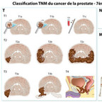 Cancer de la prostate TNM-staging-prostate-cancer-fr