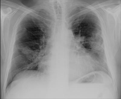 Atteinte pulmonaire d'une maladie de Wegener Thorax face