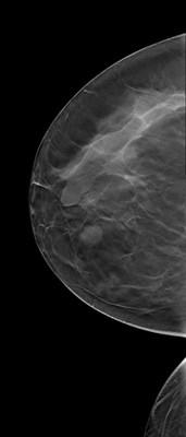 Fibroadénomes et hamartome stables du sein droit,  ACR 2. RCC Tomosynthèse