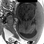 Kyste rétro cérébelleux associé à des hétérotopies périventriculaires  IRM encéphalique axiale T1