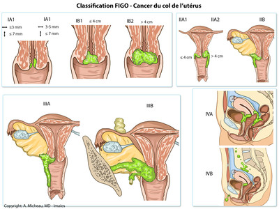 Cancer du col de l'utérus FIGO-Classification-Carcinoma-of-the-cervix-uteri-fr