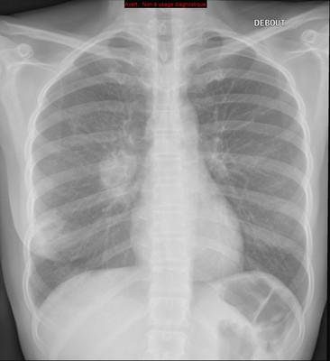 Adénocarcinome pulmonaire avec contingent à cellules claires  Radiographie Thorax