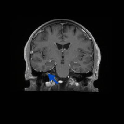 Schwannome cochléovestibulaire (neurinome de l'acoustique) T1 3D GADO AXIAL_MPR_Cor