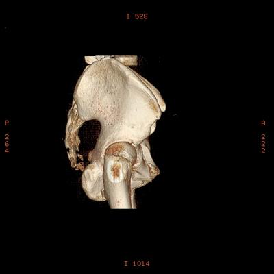 Thoracic Injuries, Subcapsular hemorrhage of liver, Pelvic injury Pelvis, 3D VR