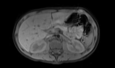 Phéochromocytome et paragangliome dans un contexte de maladie de Von Hippel Lindau ser008img00001