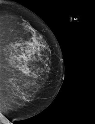 SBR grade 2 infiltrating ductal carcinoma 6-LML