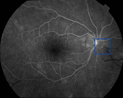 Occlusion de la branche temporale inférieure de l'artère centrale de la rétine OD Angiographie Fluo OD