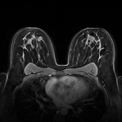 Stable fibroadenomas and hamartoma in the right breast, ACR 2. Dynamique FS 2 min
