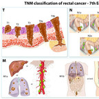 Colorectal cancer staging TNM-rectum-cancer-staging