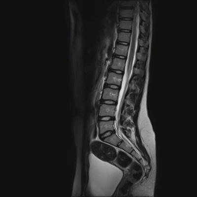 Lipome spinal intradural lombaire T2 TSE SAG