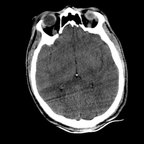 Cranioencephalic injuries, limb injuries, aspiration pneumonia Head CT, Axial plane, Soft tissue window