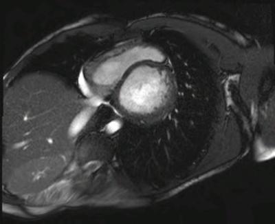 Non compaction du ventricule gauche CINE TrueFISP_PA