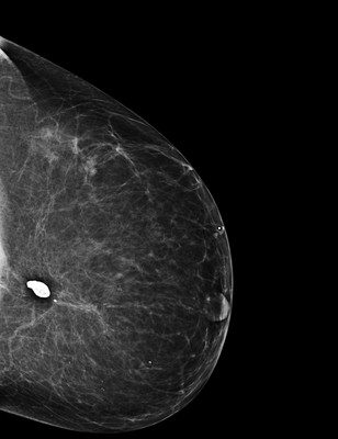Late recurrence of cancer of the left breast  1-LCC