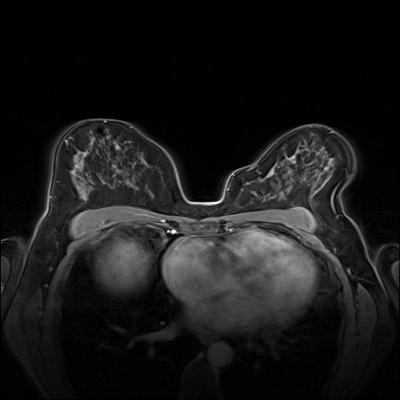 Carcinome canalaire in situ supéro-médian droit Dynamique FS 2 min
