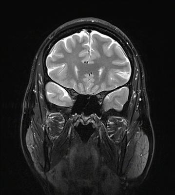 Orbitopathie basedowienne avec exophtalmie droite de grade I T2 CORO 3mm FS ORBITES
