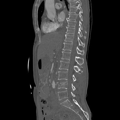 Craniocerebral trauma, Carotid artery injury with dissection, traumatic perforation of GI tract, pulmonary artery injury, Chance fracture Dorsal and lumbar spine, Sagittal plane, Bone window