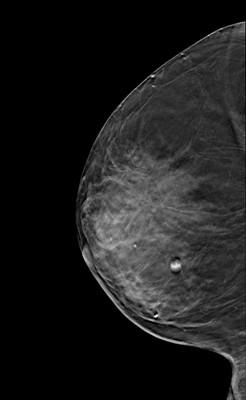 Carcinome canalaire in situ de grade intermédiaire RML Tomosynthèse
