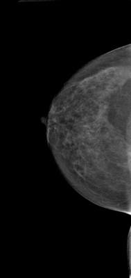 Carcinome canalaire in situ supéro-médian droit RCC Acquisition Tomo