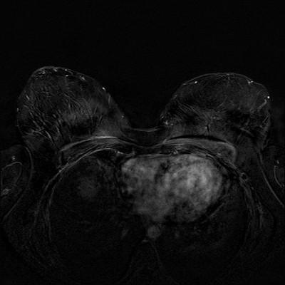 Récidive tardive de cancer du sein gauche Soustraction 4 min