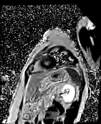 HVG avec asynchronisme marqué du septum interventriculaire PSIR-TFL PA_PSIR