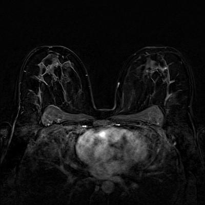 Fibroadénomes et hamartome stables du sein droit,  ACR 2. Soustraction 3 min