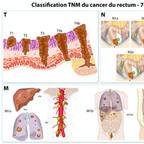 Cancer colorectal - Staging TNM du cancer du rectum classification