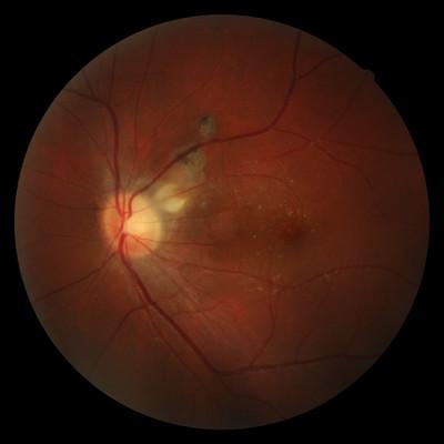 Foyer de toxoplasmose juxta-papillaire : papille de Jensen  Fond d oeil 3 semaines