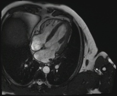 IDM antéro-septo-apical, non viable sans thrombus intracavitaire résiduel CINE TRUFI 4C