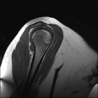 chondroblastome  IRM Membre supérieur Sagittal Pondération T1