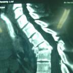 fracture de T3 TDM