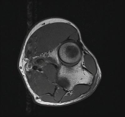 Desinsertion du tendon du biceps brachial  IRM Membre supérieur