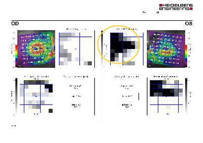 Foyer de toxoplasmose juxta-papillaire : papille de Jensen Thickness map ODG