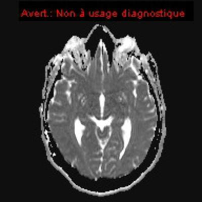 HEMANGIOBLASTOME  IRM Diffusion adc