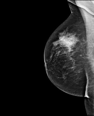 Asymétrie mammaire avec petit nodule dont l'aspect est en faveur d'un fibroadénome au sein d'un tissu glandulaire plus dense à droite. 3-RMLO