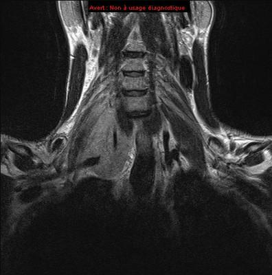 Lymphome de Burkitt  IRM Cou Coronal