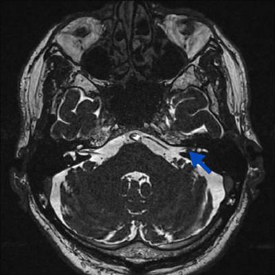 Neurinome cochléo-vestibulaire intra canalaire  IRM Crâne Axial T2