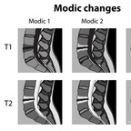 Modic changes on MRI modic-changes-degenerative-disk