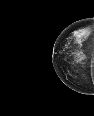 Breast asymmetry with a small nodule, the aspect of which suggests a fibroadenoma within denser glandular tissue on the right. 1-Rcc