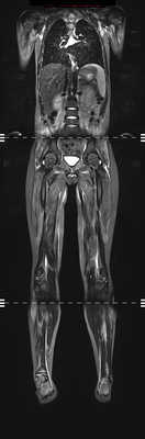 Dermatomyosite avec atteinte musculaire étendue IRM STIR coronal