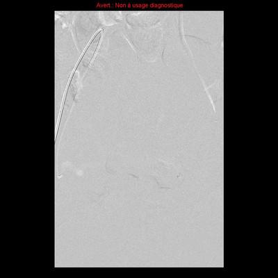 Embolisation de fibromes utérins  IRM Pelvis : embolisation de fibromes utérins