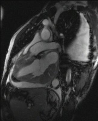 Localisation myocardique d'un lymphome B à grandes cellules CINE TRUFISP