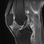 Déchirure myoaponévrotique du semi membraneux  IRM Membre inférieur DP
