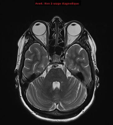Méningiome de la selle turcique T1 TSE coronal
