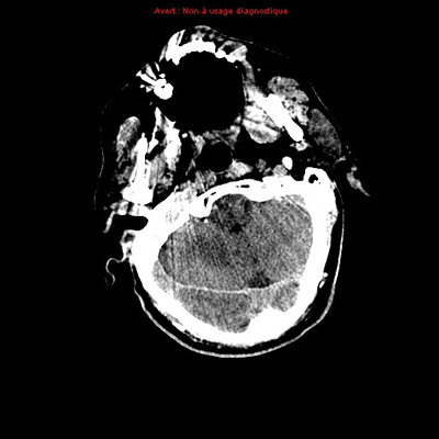 lepto-pachyméningite aigue bactérienne  TDM Crâne Axial