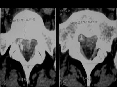 kyste anevrysmal de L5: évolution radiologique Image 8