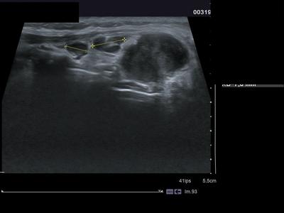 lymphome de MALT  Echographie Cou