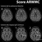Echelle ARWMC (Age-Related White Matter Changes) Score-ARWMC-Leucopathie-substance-blanche-IRM