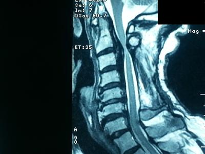 Maladie des japonais du rachis cervical IRM EN T2