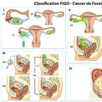 Cancer de l'ovaire FIGO-Classification-Ovaire-Cancer