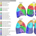 Anatomie du poumon  Autre